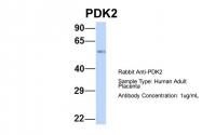 ARP31776_P050 - PDK1