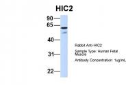 ARP31802_P050 - HIC2 / ZBTB30
