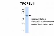 ARP31918_P050 - TFCP2L1