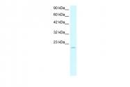 ARP32002_T100 - ARNTL / BMAL1