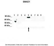 ARP32006_P050 - SMAD5