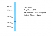 ARP32174_P050 - Homeobox protein goosecoid / GSC