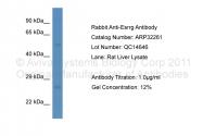 ARP32261_P050 - Estrogen-related receptor gamma