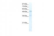 ARP32300_T100 - FOXC1 / FKHL7 / FREAC3