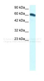 ARP32307_T100 - FOXC2 / FKHL14 / MFH1