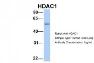 ARP32358_P050 - HDAC1