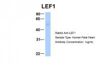 ARP32404_P050 - LEF1