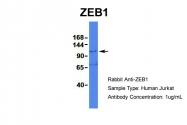 ARP32422_P050 - ZEB1