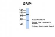 ARP32497_P050 - GRIP1