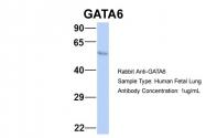 ARP32550_P050 - GATA6