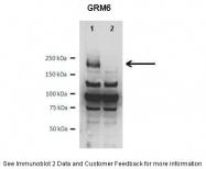 ARP32597_P050 - mGluR6 / GRM6
