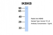 ARP32665_P050 - IKBKB / IKKB