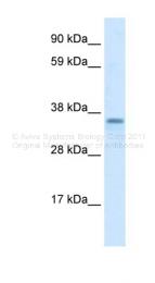 ARP32751_T100 - ZC2HC1A