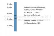 ARP32831_P050 - MORF4L1