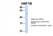ARP32999_P050 - HNF1 beta / TCF2