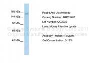 ARP33487_P050 - KDM6A / UTX