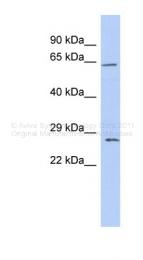 ARP33612_P050 - Claudin-18 / CLDN18