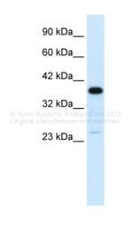 ARP33814_P050 - C4b-binding protein beta