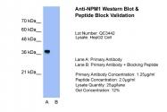 ARP34094_T100 - Nucleophosmin