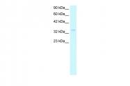 ARP34095_T100 - Nucleophosmin