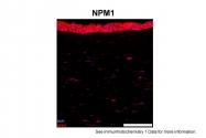 ARP34114_T100 - Nucleophosmin