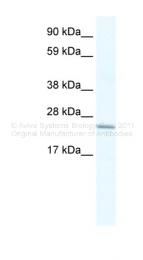 ARP34374_P050 - Cysteine-rich protein 2