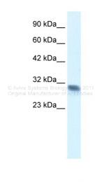 ARP34506_T100 - FHL2 / SLIM3