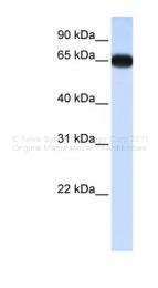 ARP34508_P050 - DLX4 / BP1