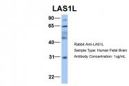 ARP34629_P050 - LAS1L