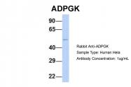 ARP34632_P050 - ADPGK