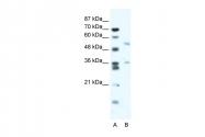 ARP34740_T100 - BTBD3