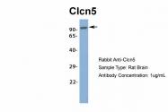 ARP34914_P050 - CLCN5