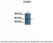ARP34924_P050 - KCNQ1