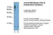 ARP35094_T100 - KCNN2