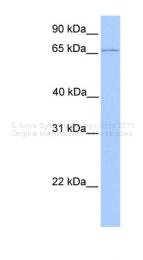 ARP35132_P050 - CLCNKA