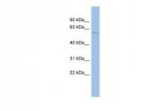ARP35278_P050 - Mucolipin-3