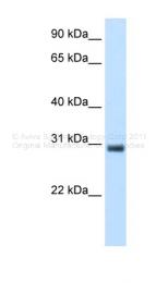 ARP35425_T100 - KCTD6