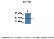 ARP35529_T100 - KCNQ1