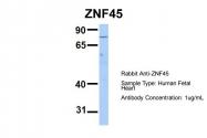 ARP35665_P050 - ZNF45