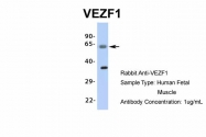 ARP35830_P050 - VEZF1
