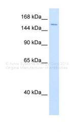 ARP36343_P050 - DHX9