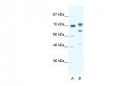 ARP36374_P050 - DDX21