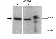 ARP36551_P050 - Beta-1 adrenergic receptor