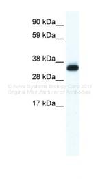 ARP36687_T100 - Annexin A5 / ANXA5