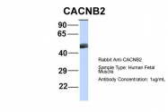 ARP36763_P050 - CACNB4