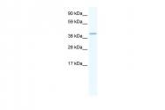 ARP36860_T100 - GATA5