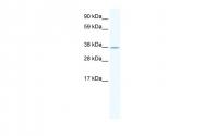ARP36943_T100 - NKX2-3