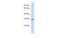 ARP36992_P050 - TFAM / TCF6