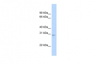 ARP36993_P050 - TFAM / TCF6