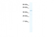 ARP37342_T100 - MEF2C